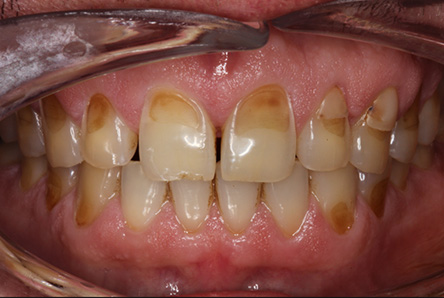 Dental erosion example