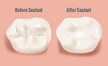 Πριν και μετά το οδοντικό σφράγισμα - Before and after dental sealant