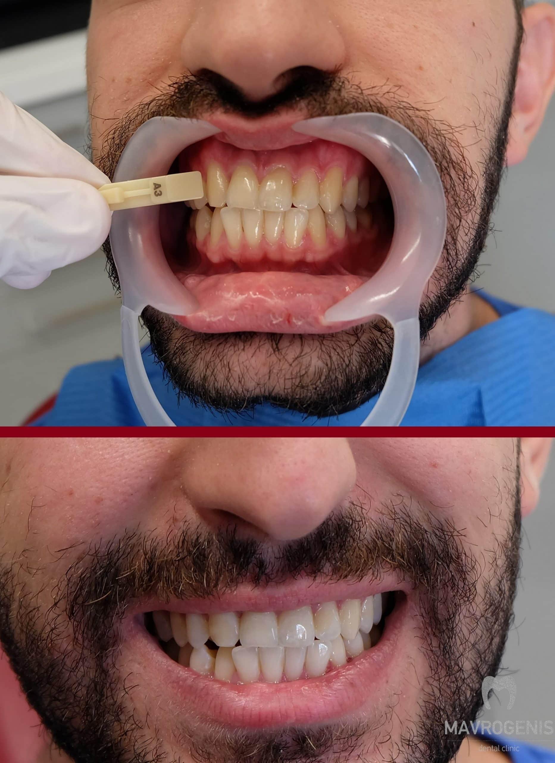 Πριν και μετά την λεύκανση δοντιών