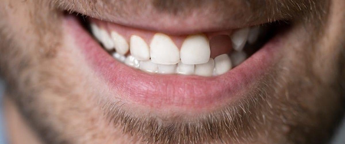 απώλεια δοντιών